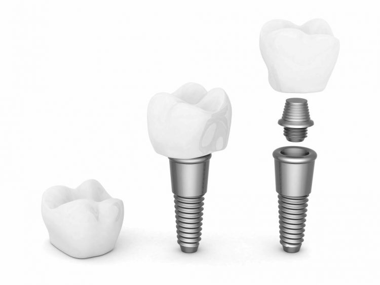 images2implant-dentaire-8.jpg