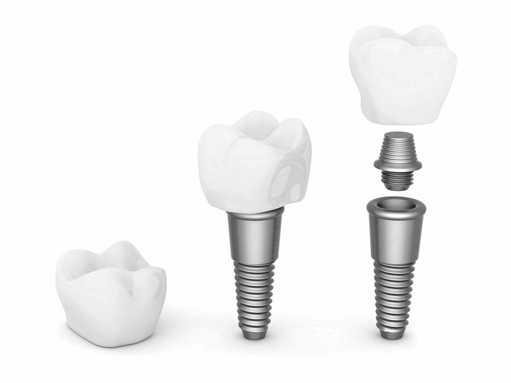Que faut-il savoir sur l'implantologie dentaire?